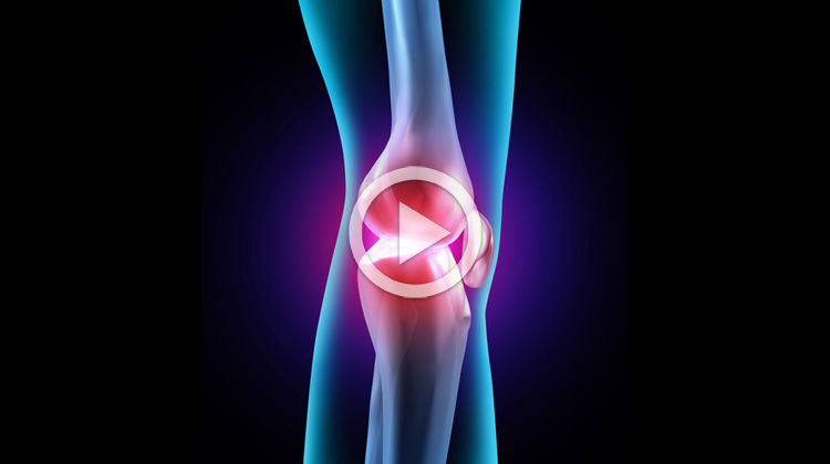 Artróza, bolesti kloubů a účinky magnetoterapie