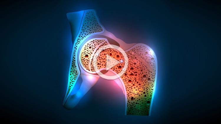 Osteoporóza a účinky magnetoterapie